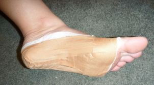 Figure 6: Low-dye taping for plantar fasciitis.