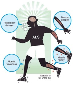 ALS, Amyotrpohic Lateral Sclerosis, Motor Neurone Disease